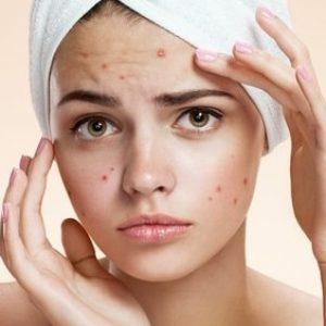 7 روش خانگی برای درمان جوش صورت