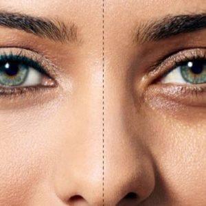 درمان سیاهی زیر چشم و عوامل ایجاد کننده آن