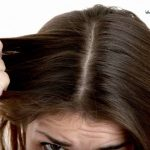 روش های درمان شوره سر